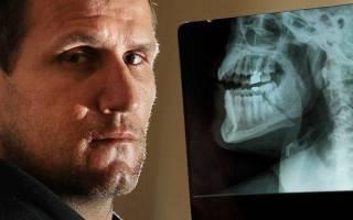 Поперечный перелом нижней челюсти какой вред здоровью